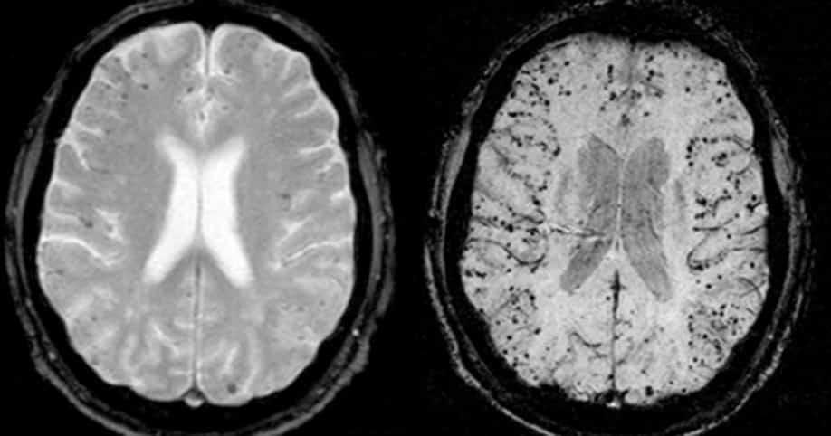 folia aluminiowa na mózg
