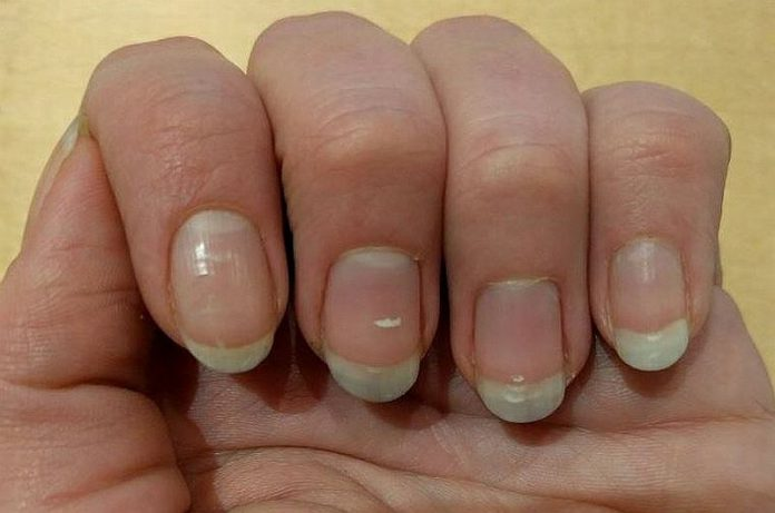 Czym są bruzdy na paznokciach?