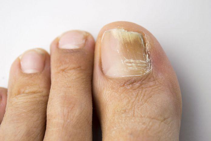 Jak objawia się grzybica paznokci?