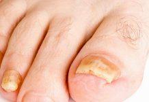 grzybica paznokci - co do niej prowadzi?