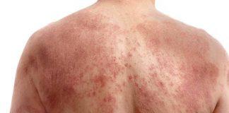 Jak objawia się łojotokowe zapalenie skóry?