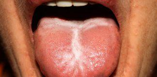 Jakie są przyczyny metalicznego posmaku w ustach?