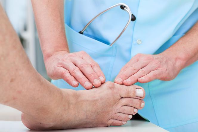 Jakie są metody leczenia haluksów?